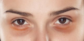 olheiras profundas