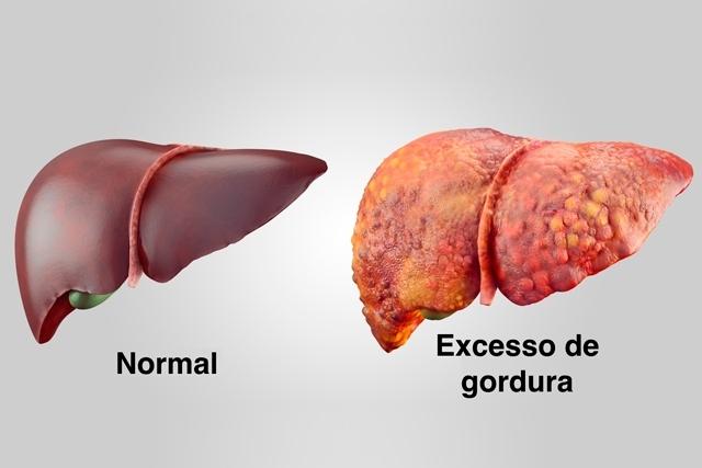 Cardápio de dieta para combater gordura no fígado